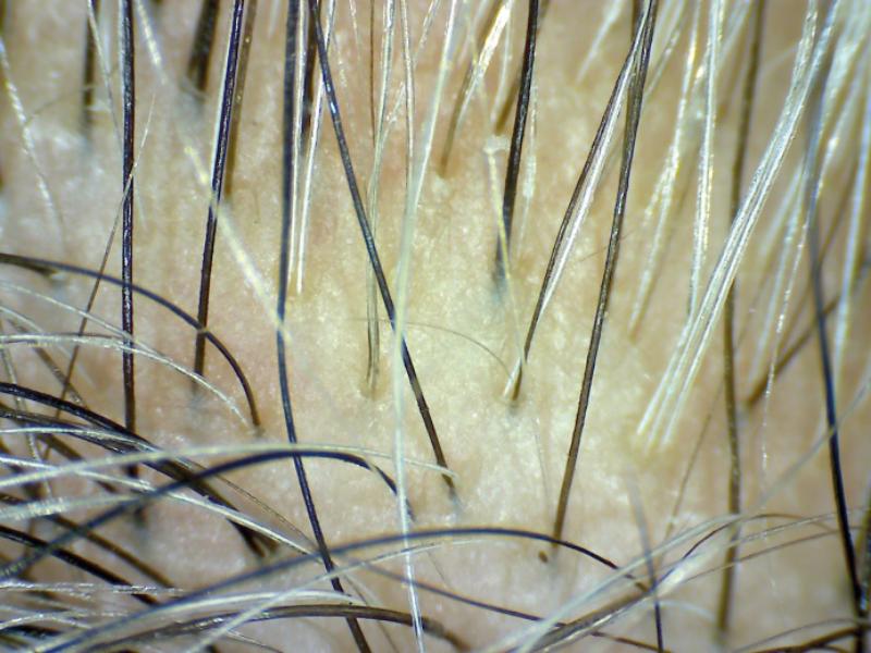 Estado del cuero cabelludo al final del estudio